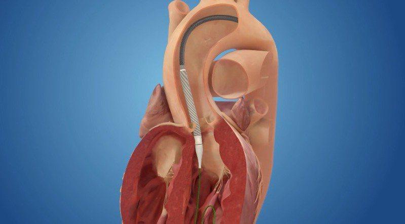 步驟2:導管抵達狹窄的主動脈瓣膜處。圖╱台北榮總心臟移植及人工心臟中心主任張效煌提供