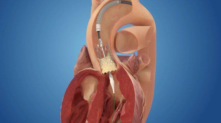 經導管主動脈瓣膜置換術4步驟 3.撐開並固定人工瓣膜後,退出導管。圖╱台北榮總心...