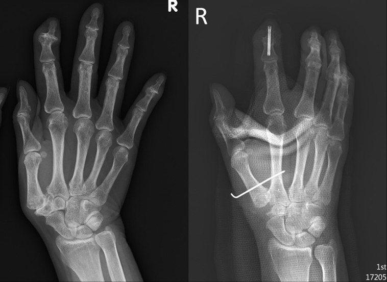 60多歲的陳媽媽大拇指嚴重變形(左圖)接受微創手術後,拇指的位置恢復原狀(右圖)...