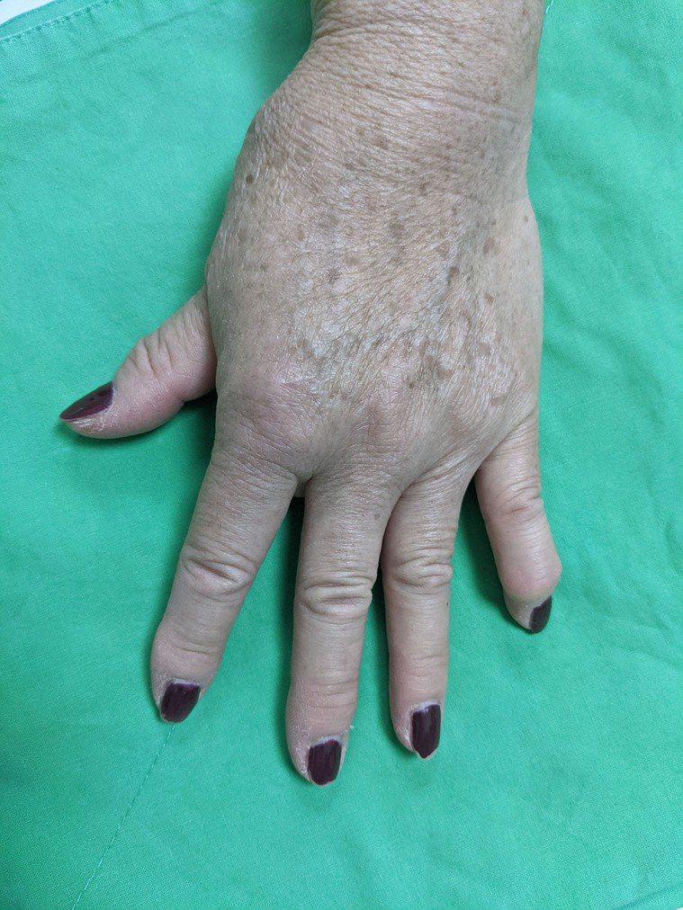 60多歲的陳媽媽大拇指嚴重變形、腫脹,無法順利拿杯子,嚴重影響到日常生活。 圖/...