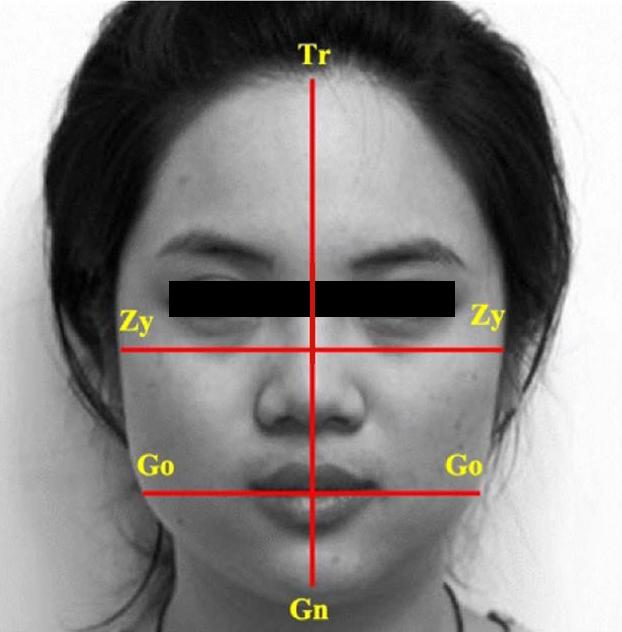 陽明交通大學與北榮合作研究發現,原來台灣人最喜歡的瓜子臉,是「下頷骨角間距」的「顴骨間距」比例為75%,如果比例上升至83%,就會被認為是「國字臉」。圖/陽明交通大學提供