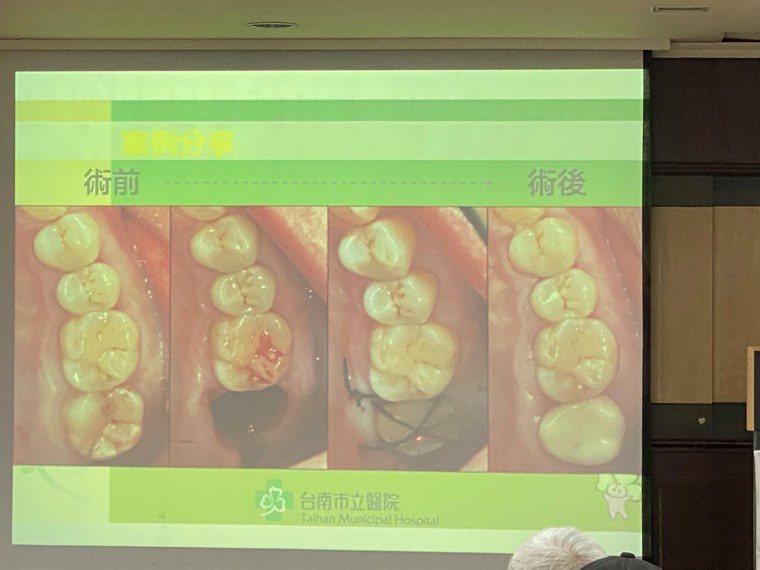台南市立醫院牙科醫師鍾瑞哲公布自體移植牙齒的案例。記者修瑞瑩/攝影