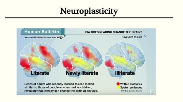 反覆閱讀的大腦,腦中灰質突觸強度變化到處都會呈現,不喜歡閱讀的人,反而比較少有增...