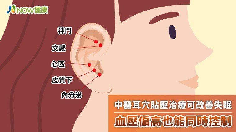 ▲醫師將耳穴貼壓膠布貼在特定的耳穴上,經過適當的耳穴按摩即可發揮助眠、降壓療效。...