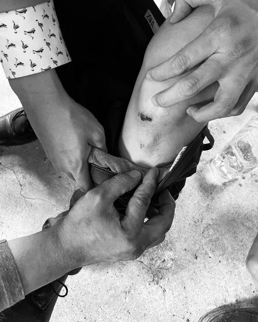 黃靖倫拍戲意外弄傷膝蓋。 圖/擷自黃靖倫臉書