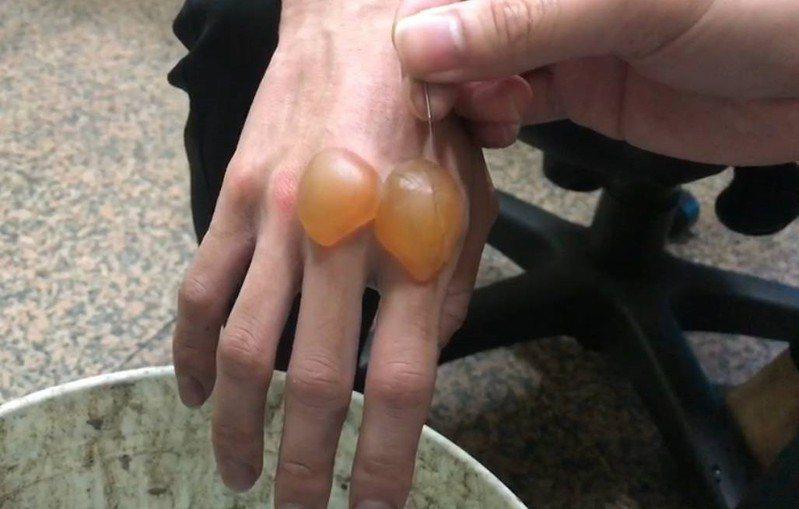 基隆市補習班大火,林姓消防隊員在火場灌救時右手背燙傷,靠近食指、無名指關節處的2顆水泡,有如「鴿子蛋」大小。記者邱瑞杰/翻攝