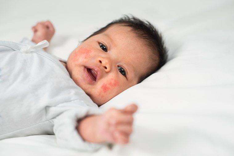 孩子過敏恐影響未來免疫系統發展。圖/開業小兒專科診所醫師巫漢盟提供