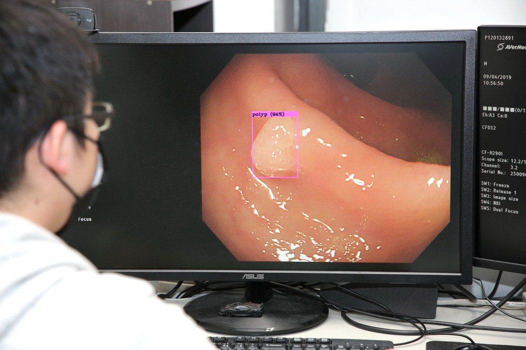 嘉大利用YOLOv4演算法成功開發「AI即時偵測大腸息肉自動偵測系統」,可精準辨...