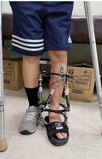 陳俊和以泰勒氏環外固定器治療,讓劉童無須拐杖即可行走。記者卜敏正/翻攝