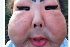她找密醫整形失敗成「鬼面具」 募款求援不成只好繼續醜下去
