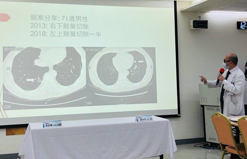 新光醫院胸腔外科主任張益誠分享71歲男性肺癌個案。記者黃惠群/攝影