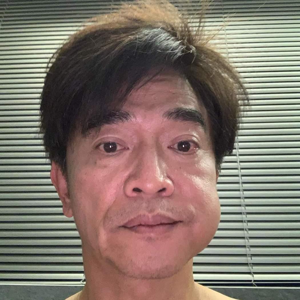 吳宗憲的半邊臉明顯腫了一大包。圖/摘自臉書