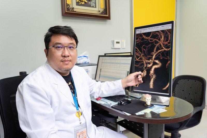 長安醫院神經外科醫師朱彥澤說,95%的腦動脈瘤破裂,事前無明顯症狀,是突發且相當危急的情形。圖/長安醫院提供