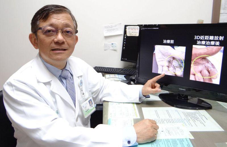 奇美醫學中心今天發表2019年底引進的「3D近距離放射治療」成果。記者周宗禎/翻攝