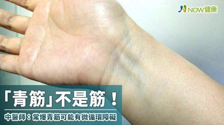 ▲所謂的「青筋」並不是筋,而是人體皮下可以看見的靜脈血管,一旦靜脈血液回流受阻、...