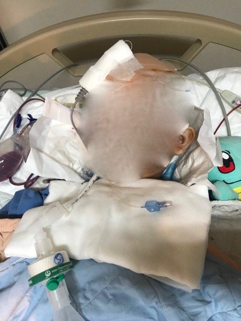 台中市豐原區南陽國小7歲黃姓男童,上柔道課時被摔了27次導致昏迷腦死,目前狀況不樂觀,依賴呼吸器維生,圖/家長提供