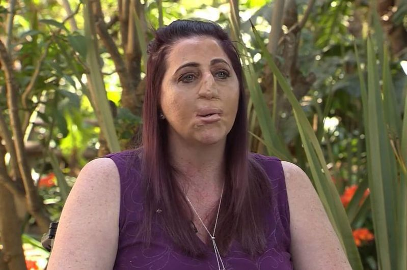 南非37歲女性因被貓鼬咬傷染上敗血症,最後失去了鼻子、嘴唇、手和腳。圖/取自mirror