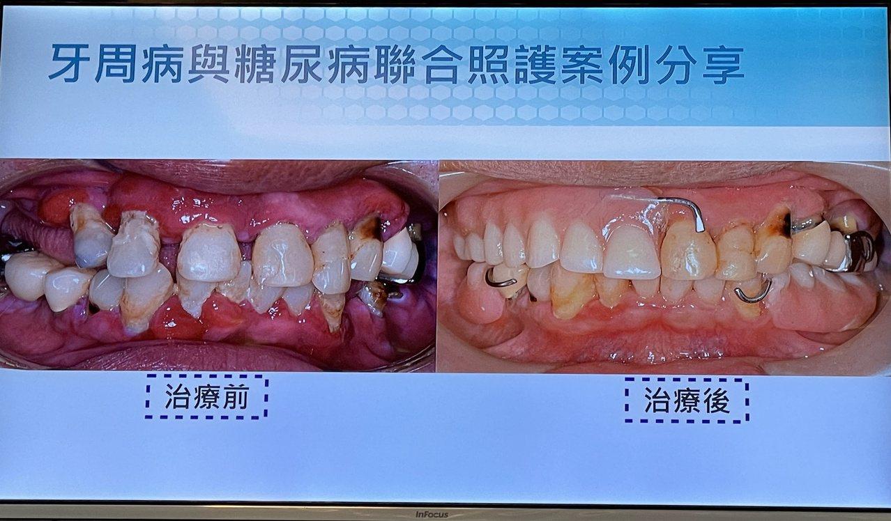 55歲張姓男子有糖尿病和患牙周病,經嘉基醫院跨科共同治療。 圖/林伯驊 攝影
