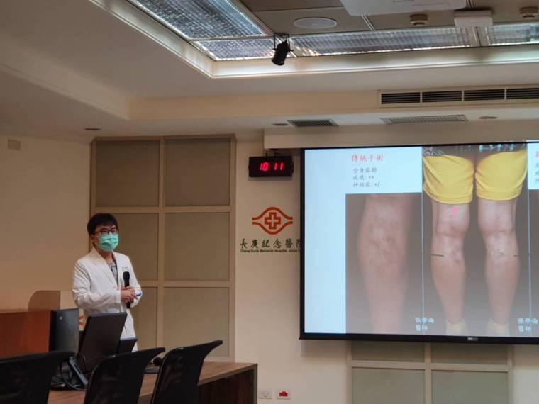 張學倫說,治療靜脈曲張新式微創手術主要有兩種方式,一是雷射燒灼術,一是靜脈膠水閉...