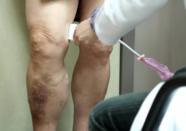 醫師利用超音波確認問題的靜脈所在。圖/長庚醫院提供