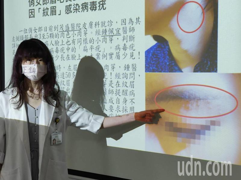 台中市一名20多歲女子紋眉後,在眉毛及頸部長出50多顆小肉芽。記者黃寅/攝影
