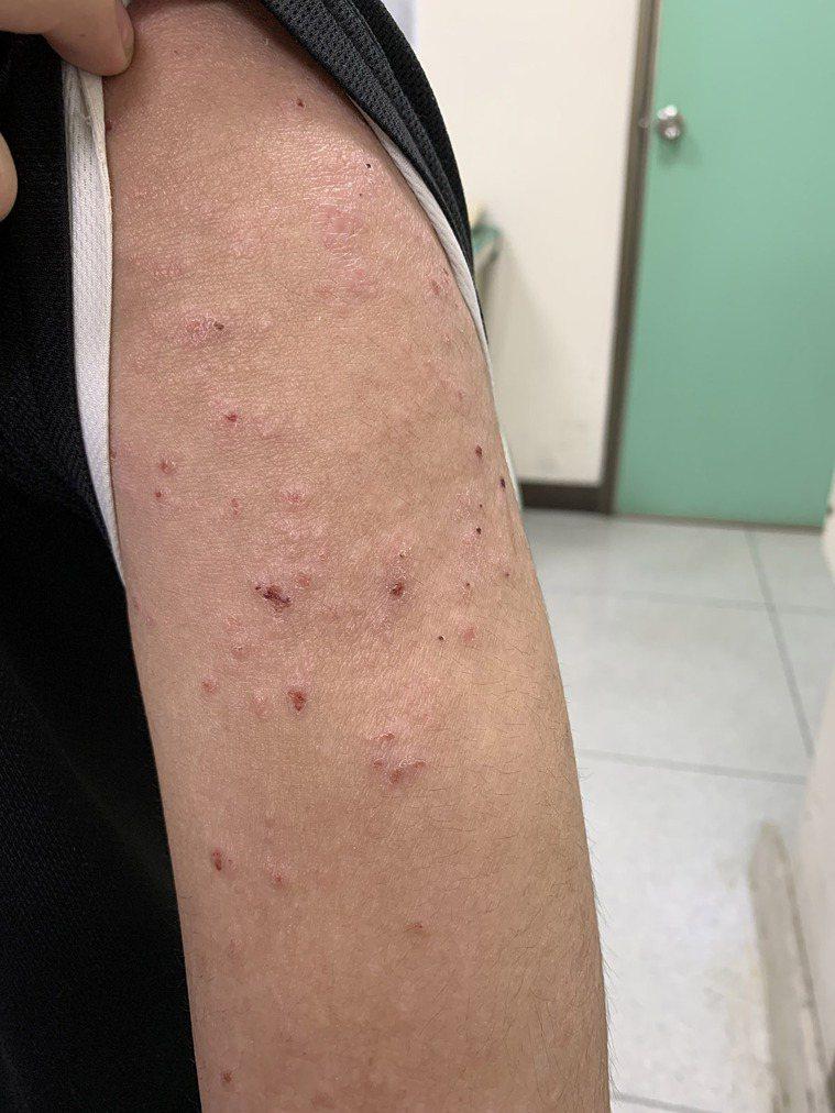 異位性皮膚炎的保濕或清潔不當,疾病可能更易復發。 圖/黃星瑋醫師 提供