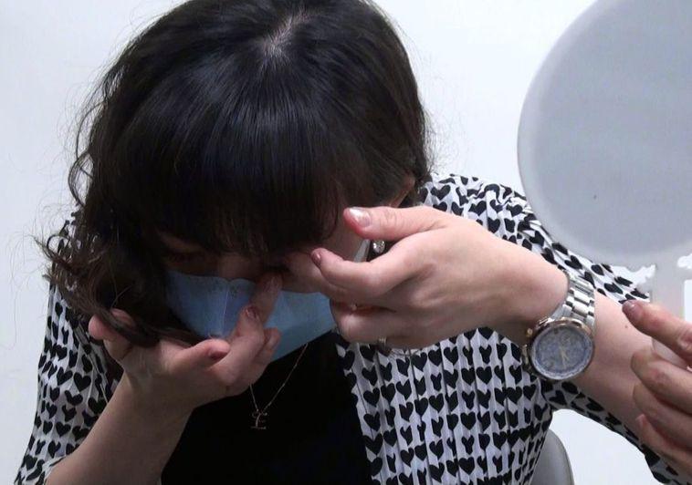 眼科醫師洪啟庭提醒隱型眼鏡族,戴隱型眼鏡一定要注意清潔,避誘發「上部邊緣角局結膜...