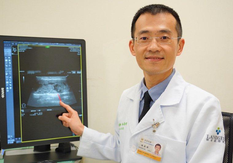 林晏甥說甲狀腺射頻消融術是微創治療,是治療良性甲狀腺結節腫大的新選擇。圖/聯新國...