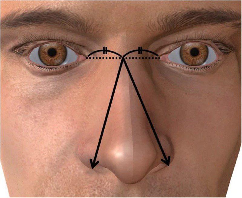 《基礎與臨床男科》期刊最新刊登的日本京都府立醫科大學一個研究團隊論文指出,鼻子較大的男人真的確實擁有較長的陰莖。畫面翻攝:Bacandrology.biomedcentral.com