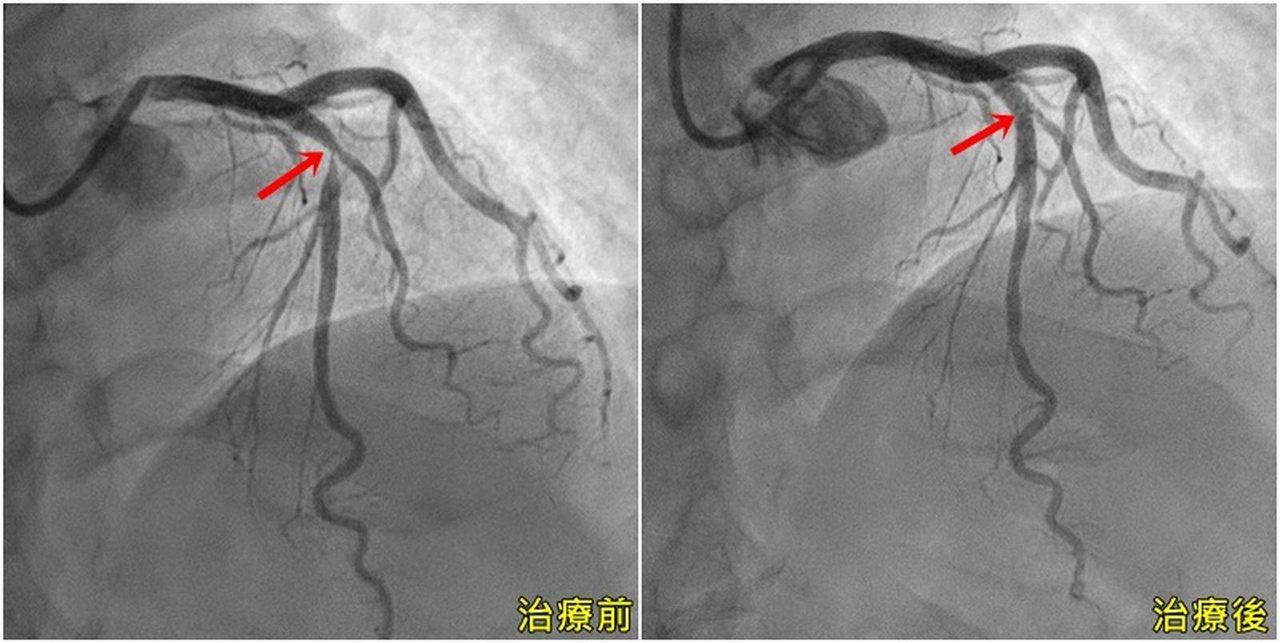 50歲謝姓山友接受運動心電圖檢查,意外發現左前降枝冠狀動脈狹窄90%,「僅剩一條...
