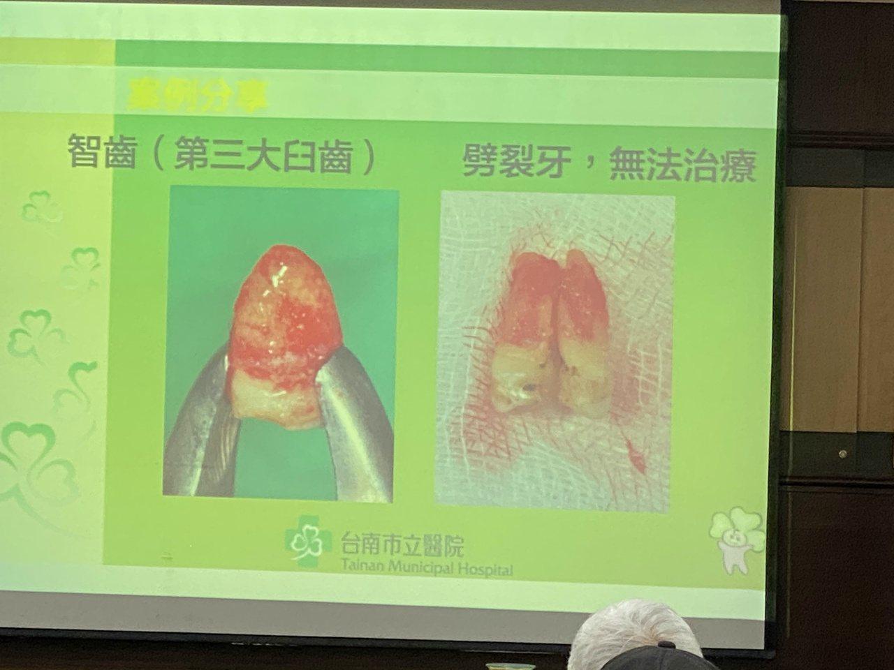 台南市立醫院牙醫師鍾瑞哲指出,缺牙患者條件若能配合,可考慮自體移植臼齒到缺牙窩洞...