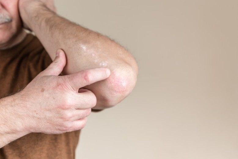 台灣腎臟病發生率居高不下,常見慢性腎臟病患因皮膚癢,抓到體無完膚,生活品質大受影...