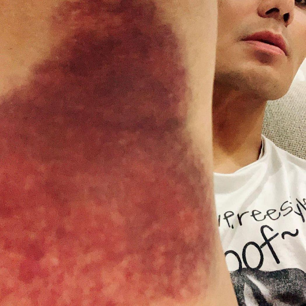 郭彥均在練習跨欄時受傷。 圖/擷自郭彥均IG