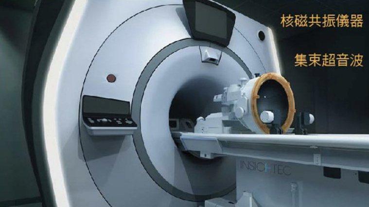 執行醫薩刀手術無需麻醉,也無需開腦,是透過集束超音波瞄準腦部的丘腦VIM核,手術...