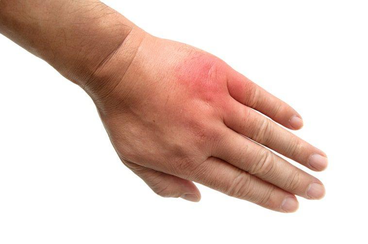 天氣漸熱,花蓮小黑蚊逐漸肆虐,醫師建議一旦被叮咬不要大力抓搔,最好沖冷水、冰敷止...