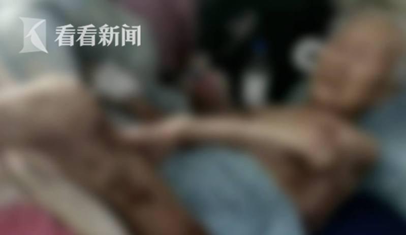 陳阿婆骨瘦如柴,全身的皮膚幾乎是流膿或結疤。(影片截圖)
