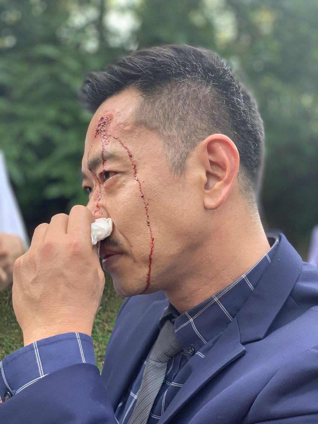 江俊翰拍「多情城市」撞車戲,頭上傷妝令其他演員也淚崩不捨。圖/民視提供