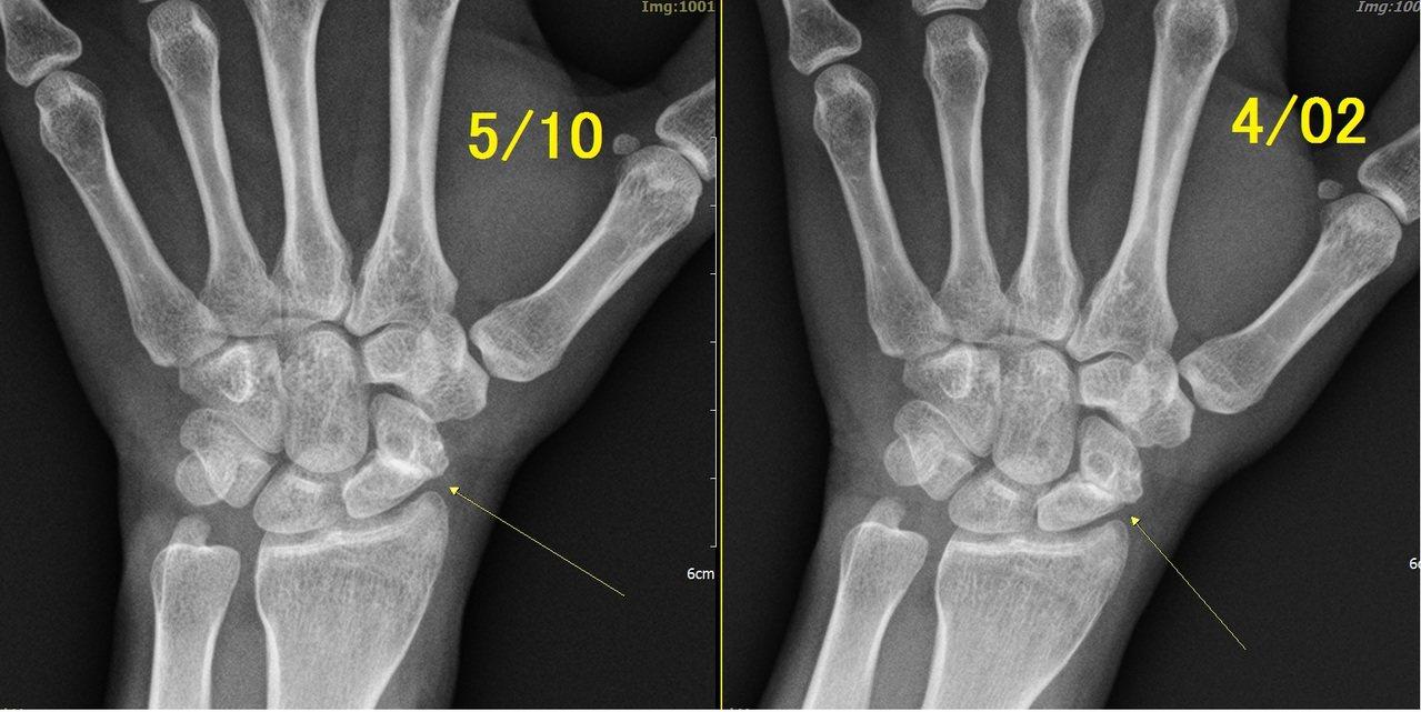 婦人爬山時跌倒用手撐地,造成舟狀骨骨折,她原以為是扭傷,痛了一年多才找出原因。 ...