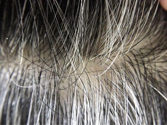 壓力造成自由基過多,白髮不斷增生。 太元生醫/提供