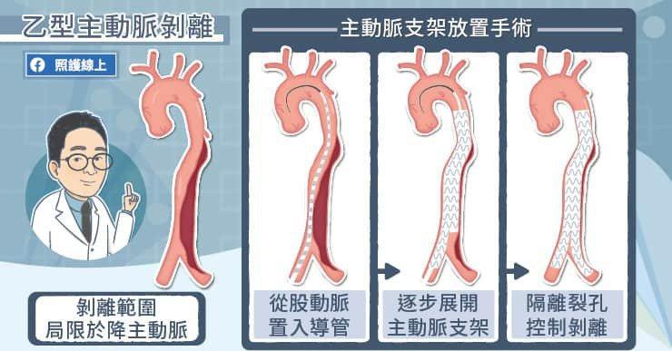 主動脈支架一開始是設計給年紀較大、手術風險較高的族群使用,一般患者若解剖構造符合...