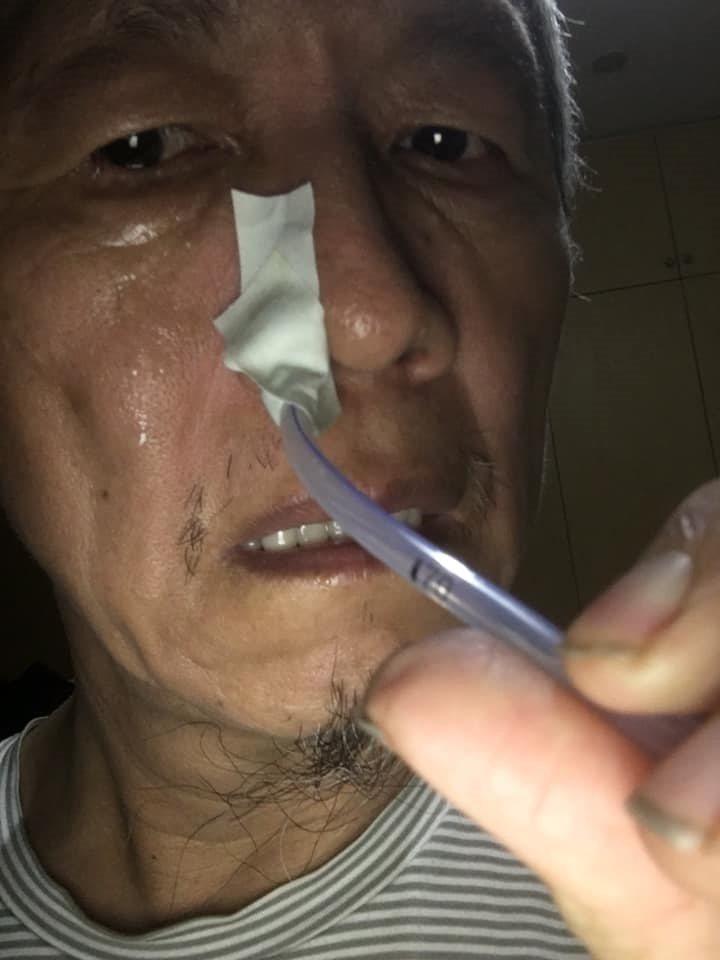 親身體驗過插鼻胃管的生活,陳乾原認為,鼻胃管的確會讓患者產生相當的不適感。(陳乾...