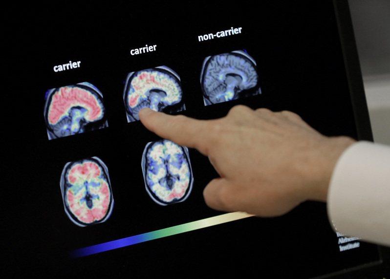 臨床試驗證實Aduhelm能分解消除腦部形成的澱粉斑塊,這種由類澱粉蛋白形成的斑塊,據信會破壞細胞,引起癡呆。圖為正子腦部掃描顯示澱粉斑塊減少。美聯社
