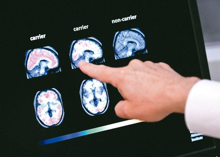 阿茲海默症是大腦內類澱粉蛋白沉積產生病理變化,出現認知功能退化。(美聯社)
