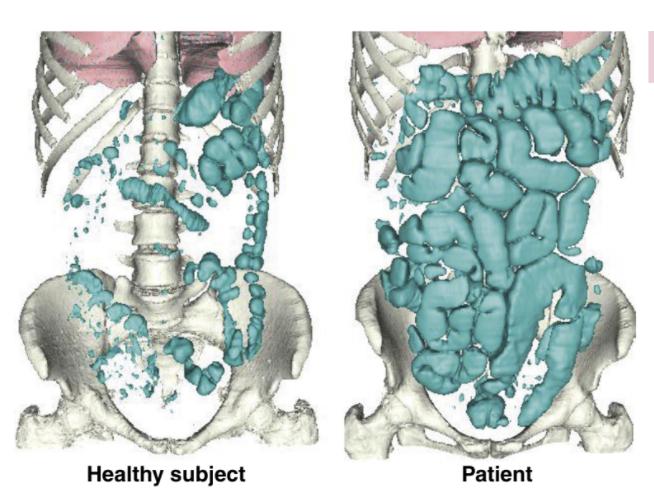 此圖為電腦斷層3D重組模擬模擬腸道氣體(藍綠色)情形,右圖為小腸充滿脹氣。