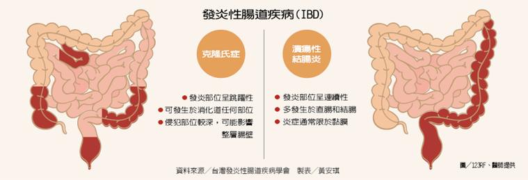 發炎性腸道疾病(IBD) 製表/元氣周報 圖╱123RF