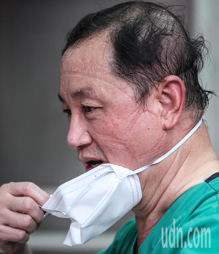 新北市樂生療養院快篩站採檢醫生休息時脫下口罩喘氣,臉上充滿汗珠與口罩印痕。記者葉...