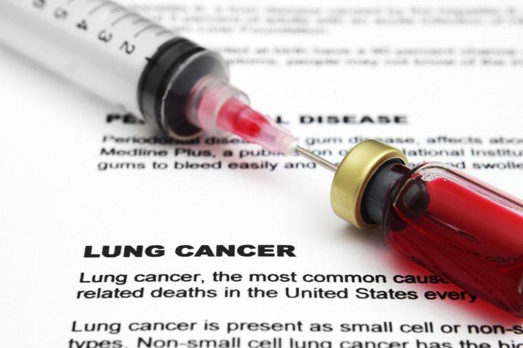 去年十大死因排名首位,癌症依舊位居第一名。示意圖/ingimage授權