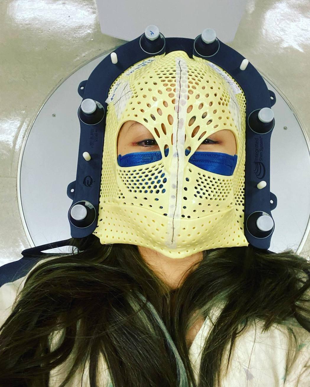筱蕾日前分享治療戴上面罩的照片。圖/擷自臉書