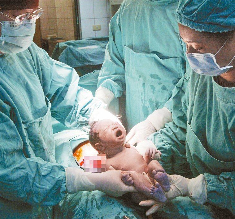 陽明院區護理師懷胎30周卻因救人染疫,上周三因病況危急緊急剖腹生產,圖為示意圖,...