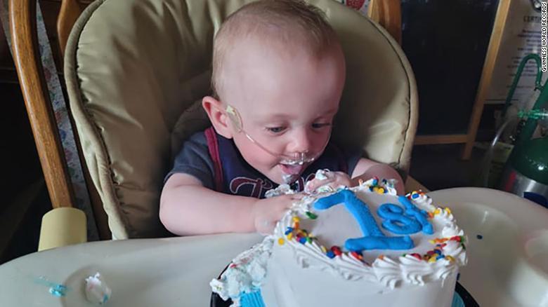 美國一名男嬰理查於去年6月5日出生、整整提早了131天,重量更只有340公克,當...
